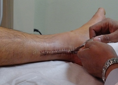 Stem Cells inside Sutures could improve Healing in Achilles Tendon injuries   Stem Cells Repair Injured Athletes   Scoop.it