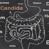 Is bacterial vaginosis normal