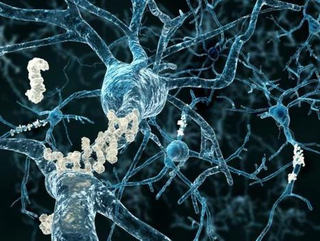 Alzheimer's protein 'can accumulate in young people's brains' | Neurociencia y psicología | Scoop.it