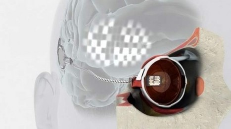 First Bionic eye implant | ARCHIresource | Scoop.it