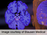 AAIC: A healthy lifestyle may deflect dementia | Cognitive Fitness and Brain Health | Scoop.it