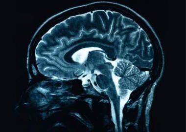 Acquired Brain Injury Outreach Service (ABIOS) What is ABI | Acquired Brain Injury | Scoop.it