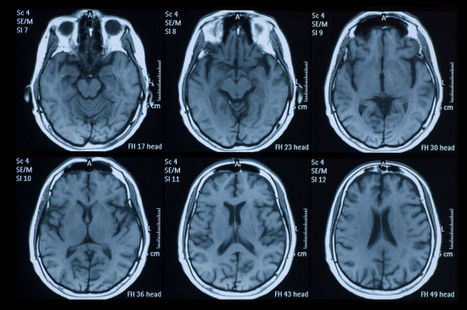 MRI Scans Can Detect Early Onset of Parkinson's, Study Finds - TIME | Neuroscience: Parkinson's disease | Scoop.it