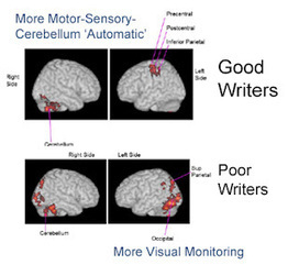 Eide Neurolearning Blog: fMRI of Dysgraphia - Lack of Automaticity and Need for Visual Monitoring | 21st Century Concepts- Educational Neuroscience | Scoop.it