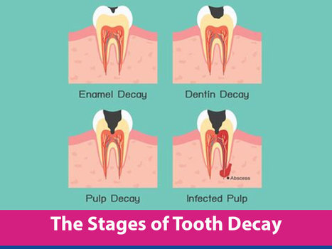 How to Prevent Tooth Decay | Cavities in Teeth | Dental health conditions, Treatments & remedies. | Scoop.it