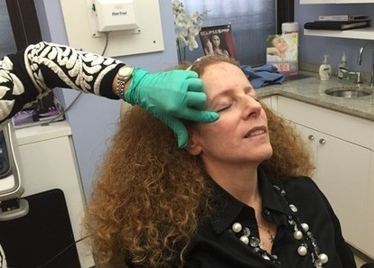 Filler facelift experience with The Beauty Expert and Dr. Pearlman's team | Living style | Scoop.it