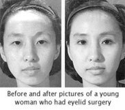 Asian-Americans Criticize Eyelid Surgery Craze | Womens eNews | English Language Learners in the Classroom | Scoop.it