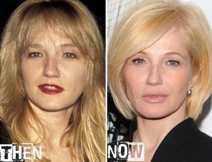 Ellen Barkin Plastic Surgery Before & After Photos | Celebrity Plastic Surgery | Scoop.it