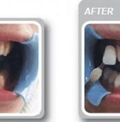 Smile60 Teeth Whitening Huntingdon | John Marc | Scoop.it