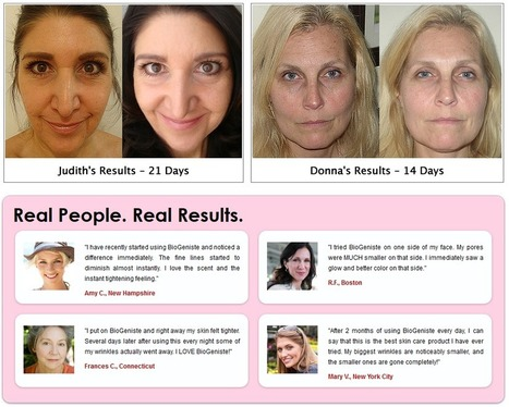 BioGeniste Instant Wrinkle Reduce – Get Free Trial | HAVE YOU ANY IDEA ABOUT BIOGENISTE | Scoop.it
