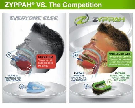 ZYPPAH Stop Snoring Mouth Guard – THE Best Anti-Snoring Device!   Blossoms'   Scoop.it