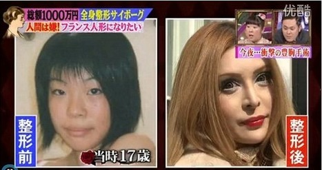 Plastic Surgery Transforms Japanese Girl Into Living Porcelain Doll - ROCKETNEWS24   Plastic Surgery Best Results   Scoop.it