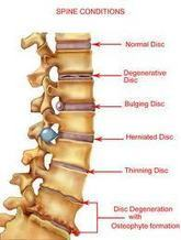 Herniated Disk Treatment   Active Physical Therapy Blog   Physical Therapy   Scoop.it