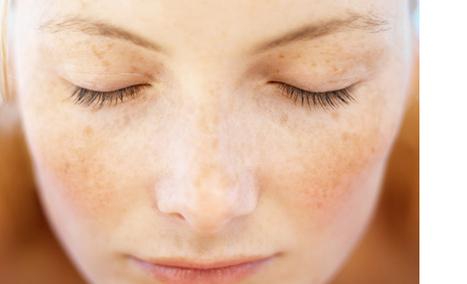 Peau sensible : Comment l'apaiser ? | Les allergènes et l'allergie cutanée | Scoop.it