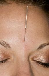Acupuncture with Herbs Clears Acne - New Finding | Bedford Acupuncture | Scoop.it