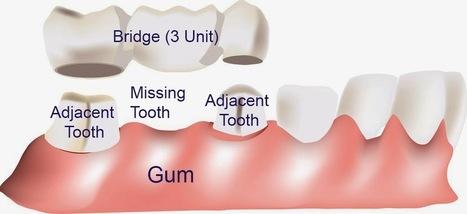 Dental Bridges Treatment and Cost: Dental Bridges Treatment and Cost | Tooth Extraction in Victorville CA | Scoop.it