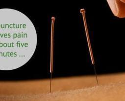 How To Your Acupuncture Treatment Guide | Acupuncturist In Morristown, Acupuncture In Morristown | Scoop.it