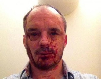 London gay hate attack leaves magazine editor beaten - The Commentator | Homosexuality Scooped! | Scoop.it