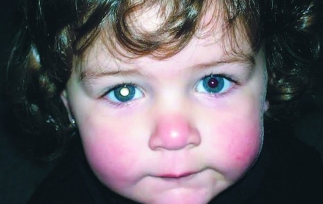 Retinoblastoma: un tipo de cáncer muy extraño | Salud Visual 2.0 | Scoop.it