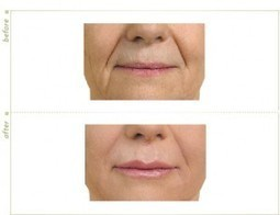 Say Good bye to fine lines With Anti-Wrinkle injections | Younger You Network | Anti Ageing Treatment | Scoop.it