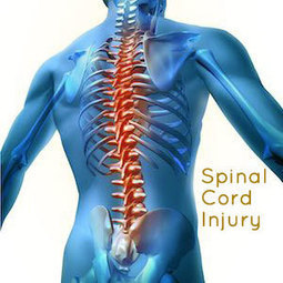 An overlook on Spinal Cord Injury | Orthopedic Rehabilitation Products | Orthopedic Soft Goods | Braces & Supports | Scoop.it