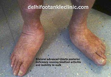 Flat Foot in India | Flat Foot | Health | Scoop.it