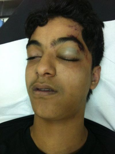 Photos: Bahraini Young Martyr 'Sayyed Ahmad Saeed Shams' Bears the Image of a Martyr | Human Rights and the Will to be free | Scoop.it