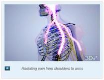 Lumbar Radiculopathy Treatment | samedayspinesurgery | Scoop.it