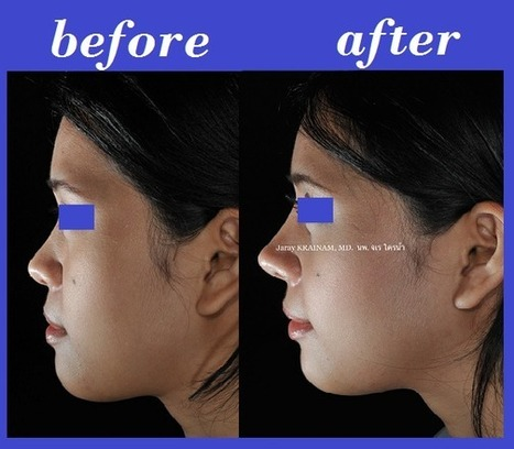 The Best Nose Augmentation In Thailand: Nose AUgmentation With Tip Plasty Using Ear Cartilage | Best Plastic Surgery Thailand | Scoop.it