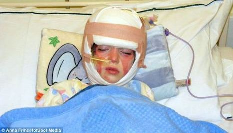 Brave schoolgirl, 10, who suffered severe burns to her face when head lice shampoo 'caught fire' | Soup for thought | Scoop.it