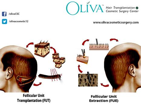 Hair transplantation for baldness cur | Hair Treatments | Scoop.it