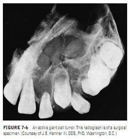 Burket's Oral Medicine: Giant Cell Granuloma (Peripheral and Central) | Peripheral giant cell granuloma | Scoop.it
