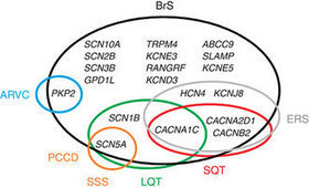 Brugada syndrome: clinical and genetic findings : Genetics in Medicine : Nature Publishing Group   Life-saving tools   Scoop.it
