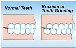 Dental Approaches to Treating Bruxism (Teeth Grinding) | Oasis Dental | Health | Scoop.it