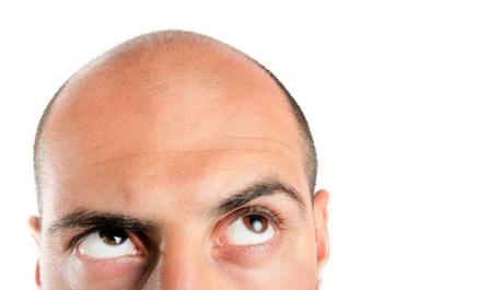 Hair Transplant or Hair Restoration System   Hair Transplant Dubai   Scoop.it