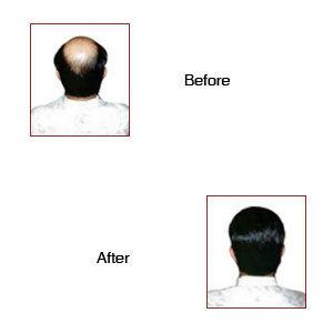 HAIR WEAVING FOR MEN IN DELHI   Hair Wig Manufacturer in Delhi   Scoop.it