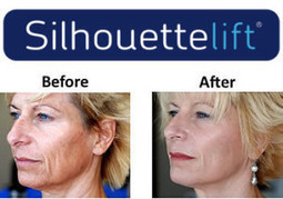 How do Minimum Procedures like Silhouette Lift Can Help Slow The Aging Process? | SilhouetteLift FaceLift | Scoop.it
