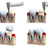 dental art implant clinic