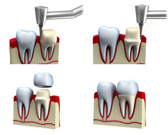 Dental Crowns/Bridges - Dental Art Implant Clinic | dental art implant clinic | Scoop.it