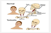 Torticollis Physiotherapy, Congenital Torticollis treatment clinic | Physiotherapy Clinic in Gurgaon | Scoop.it