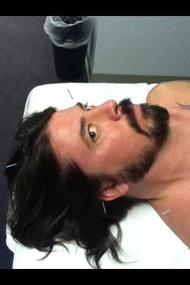 Dave Grohl having acupuncture. | Acupuncture | Pinterest | Acupuncture and celebrity endorsement | Scoop.it
