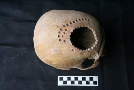 Cirugía craneal en el Perú hace casi MIL años — Noticias de la Ciencia y la Tecnología (Amazings®  / NCYT®) | MAZAMORRA en morada | Scoop.it