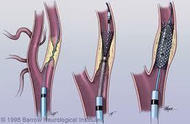 Carotid Stenting in Houston   Cardiac Catheterization and Stenting in Houston   Scoop.it