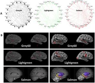 Adit Israël : Des chercheurs de l'Université Hébraïque de Jerusalem identifient des marqueurs génétiques de l'autisme dans le cerveau | Autisme actu | Scoop.it