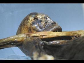 Iceman 'had bad teeth'   World Neolithic   Scoop.it