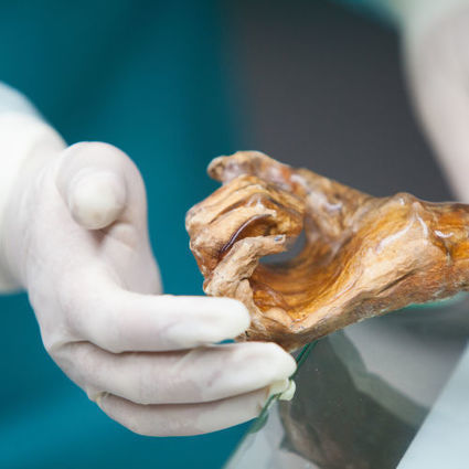 Scientists unearth bacteria from stomach of 5,300-year-old iceman   Media Cultures: Microbiology in the news   Scoop.it