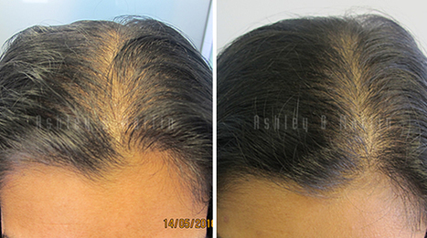 Client Concerns Supported by Ashley and Martin Staff | Hair Regrowth | Scoop.it