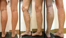 How To Get Rid Of Varicose Veins Naturally | BASIC CURE | Basic Cure | Scoop.it