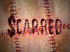Scarred | Full Episodes, Photos, Episode Synopsis and Recaps | MTV | tv shows | Scoop.it