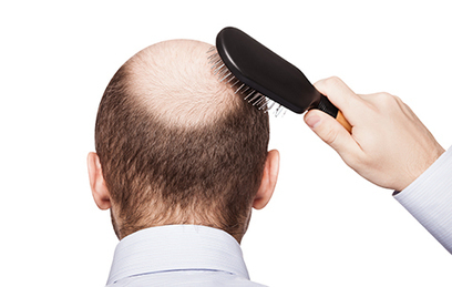Find Out If You Are a Good Candidate for Surgical Hair Restoration | BajaHairCenter | Scoop.it